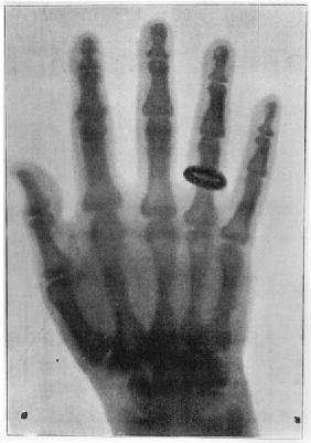 X-ray Image, from ''L''Illustration'', 25th January 1896 (b/w photo)